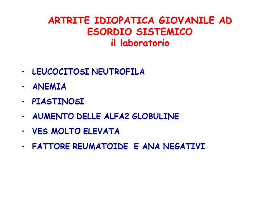 ARTRITE IDIOPATICA GIOVANILE AD ESORDIO SISTEMICO il laboratorio