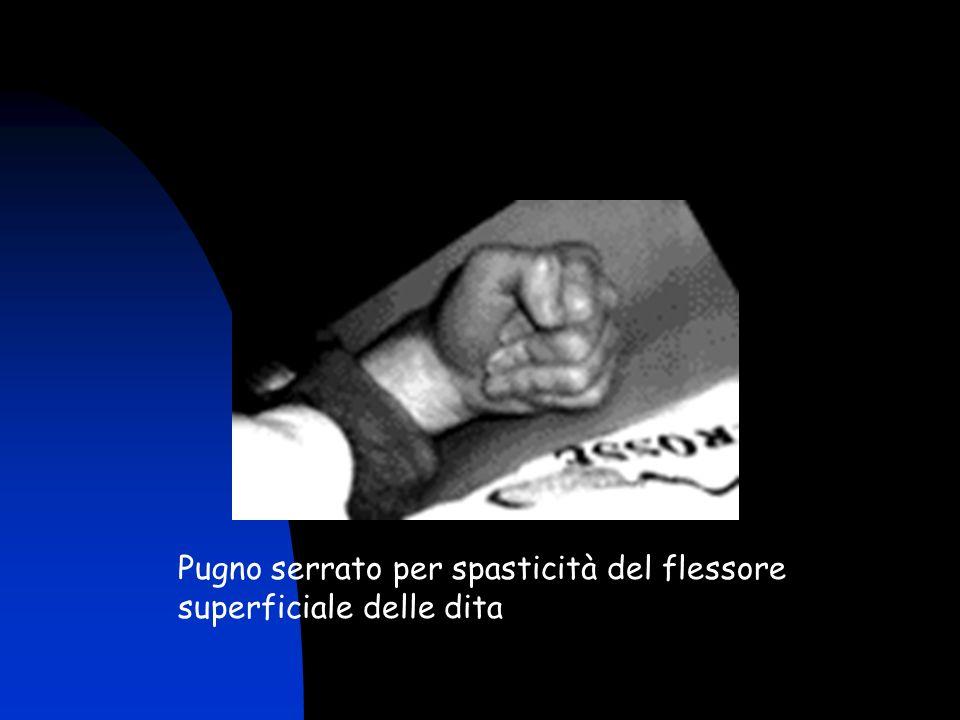 Pugno serrato per spasticità del flessore superficiale delle dita