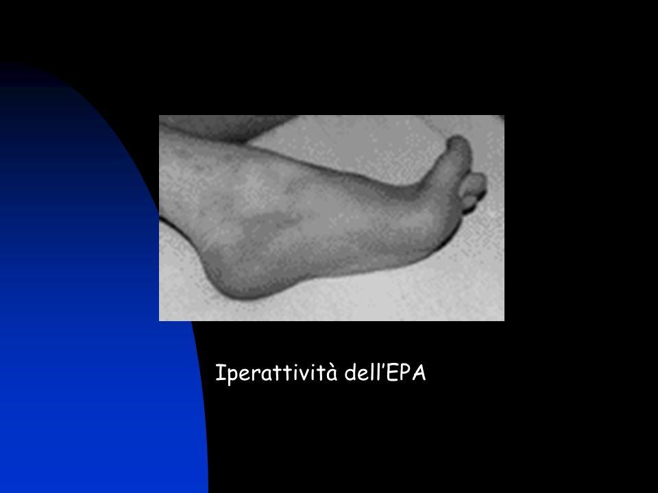 Iperattività dell'EPA