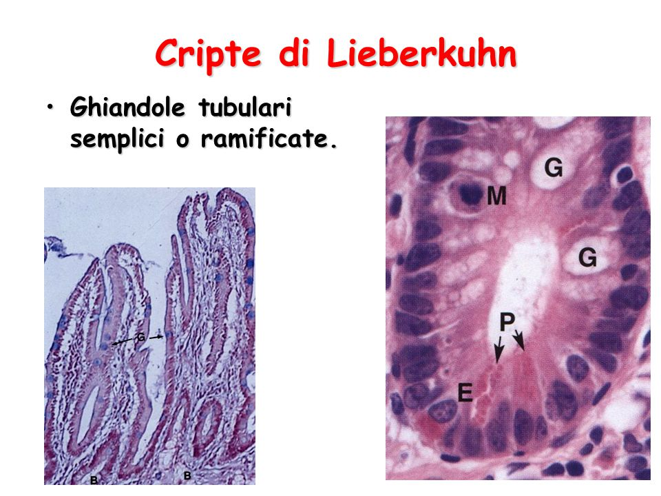 Cripte di Lieberkuhn Ghiandole tubulari semplici o ramificate.