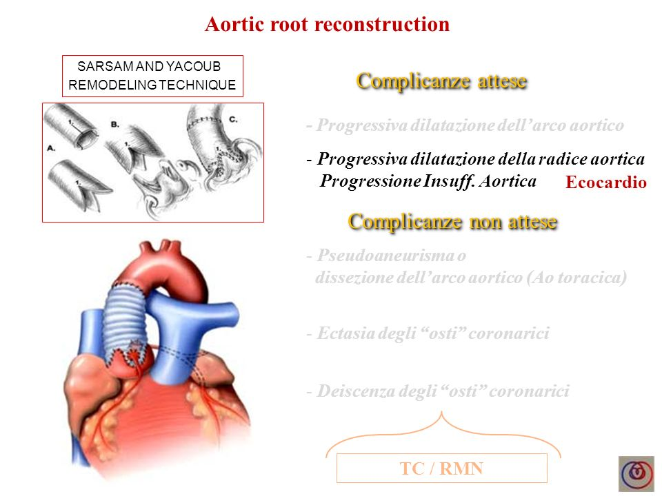 Aortic root reconstruction