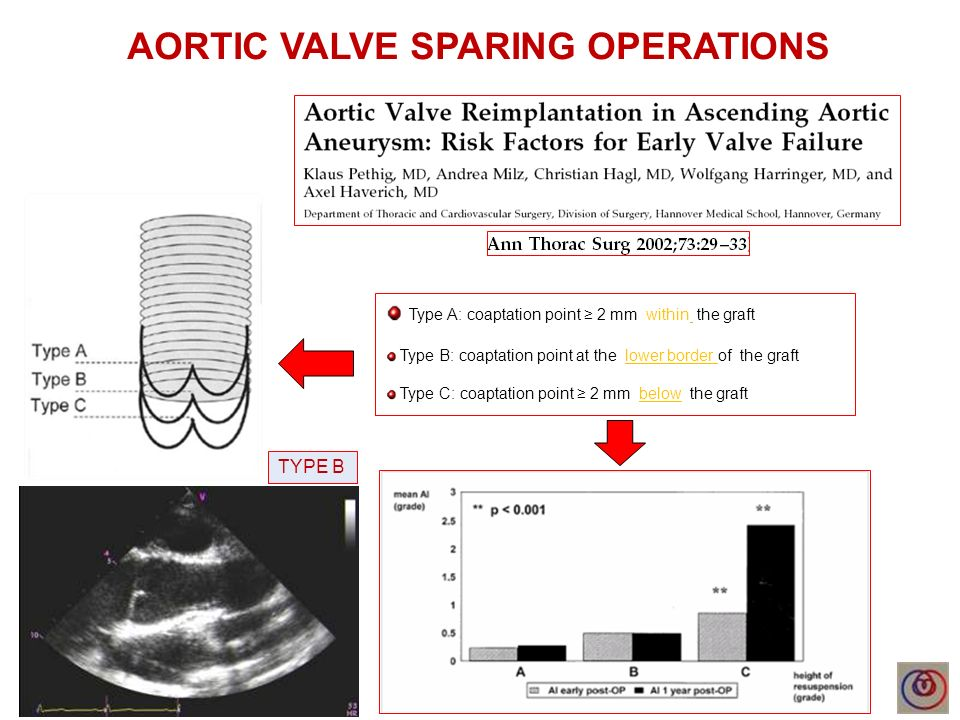 AORTIC VALVE SPARING OPERATIONS