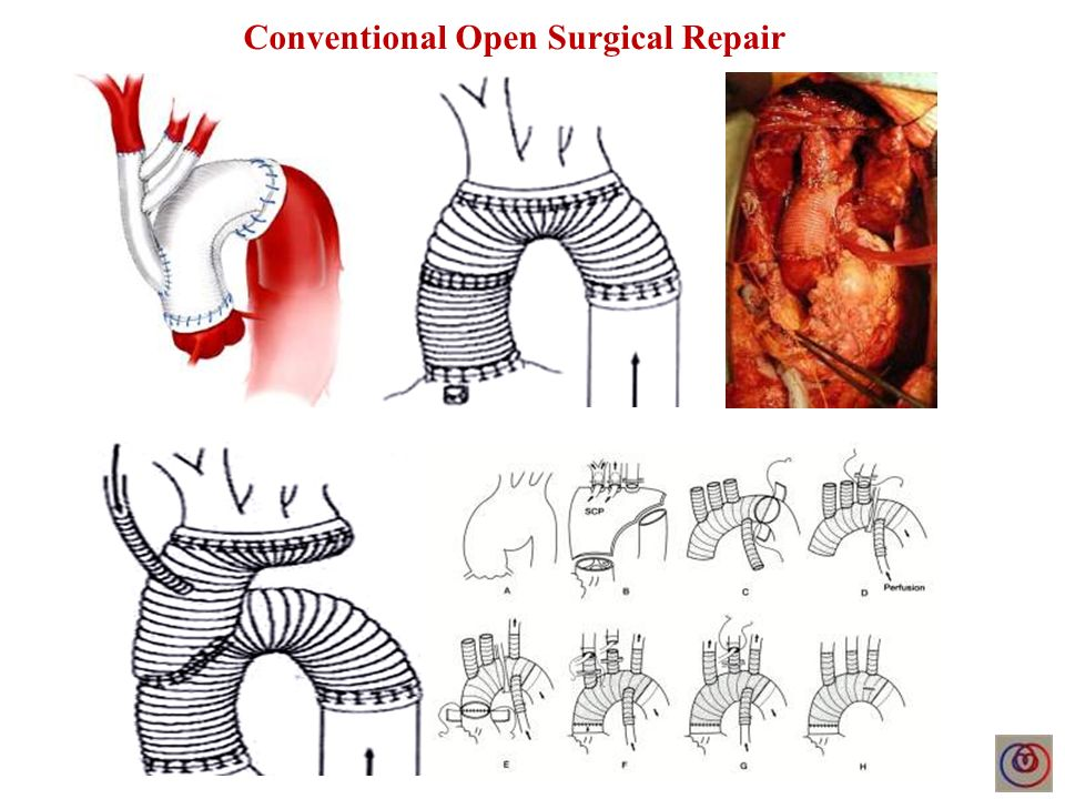 Conventional Open Surgical Repair