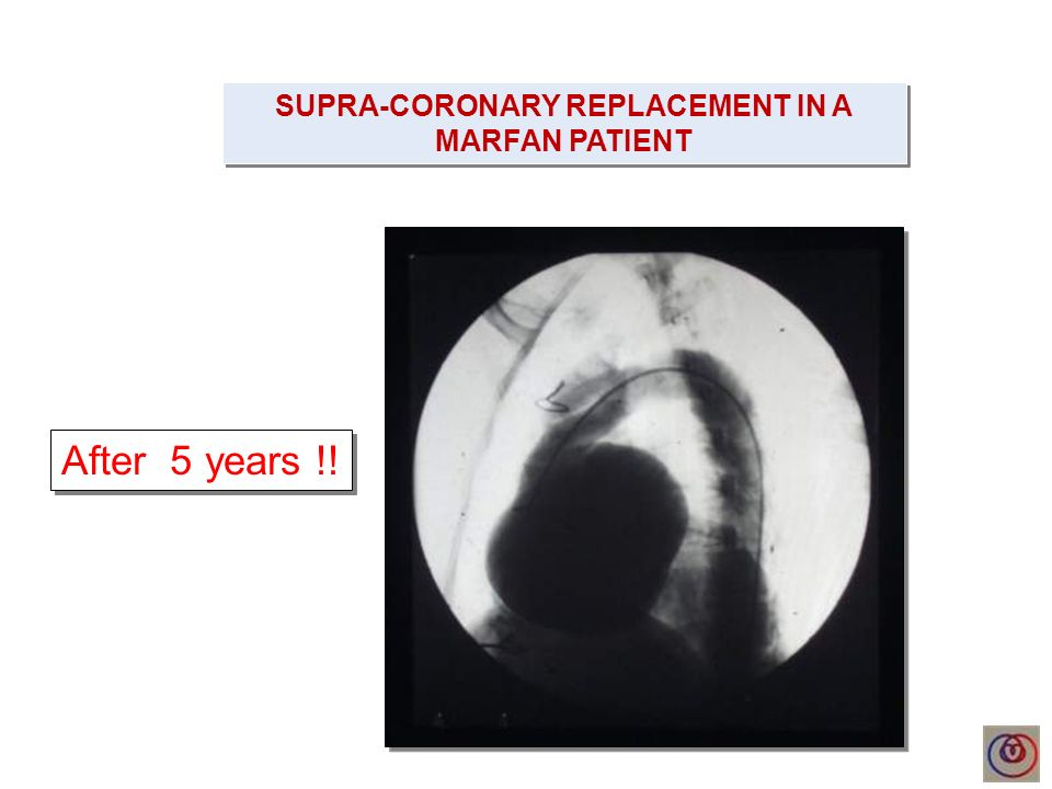 SUPRA-CORONARY REPLACEMENT IN A MARFAN PATIENT