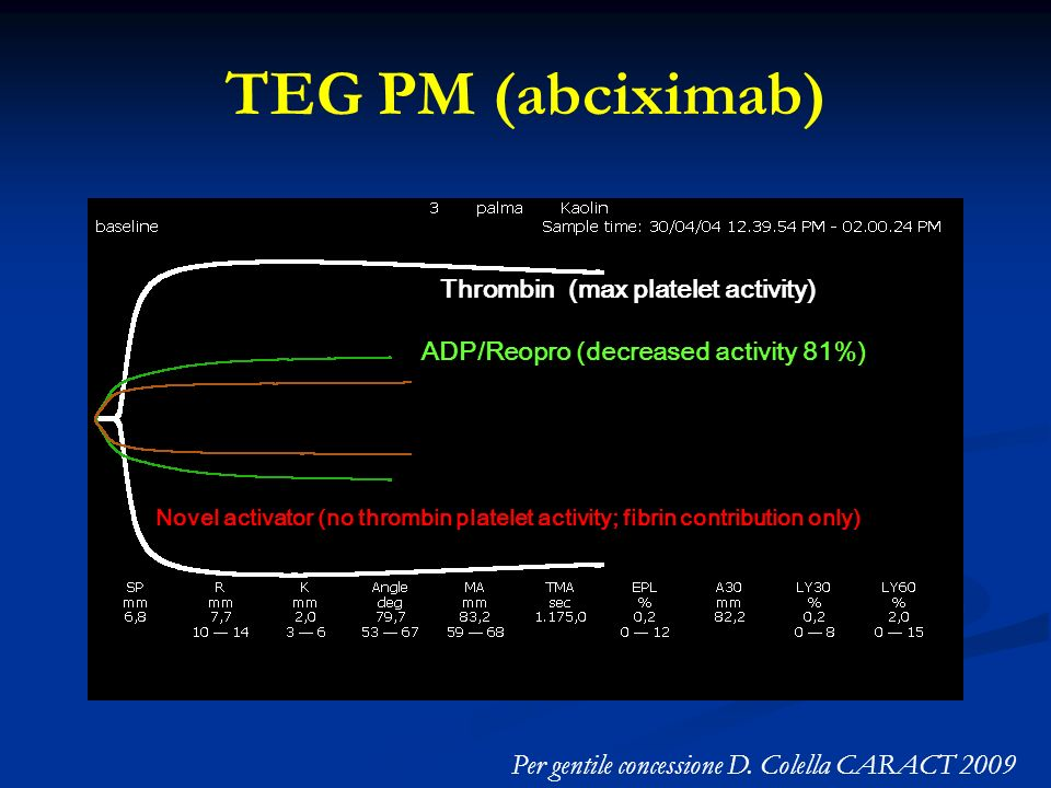TEG PM (abciximab) Per gentile concessione D. Colella CARACT 2009