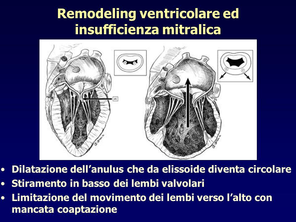 Remodeling ventricolare ed insufficienza mitralica