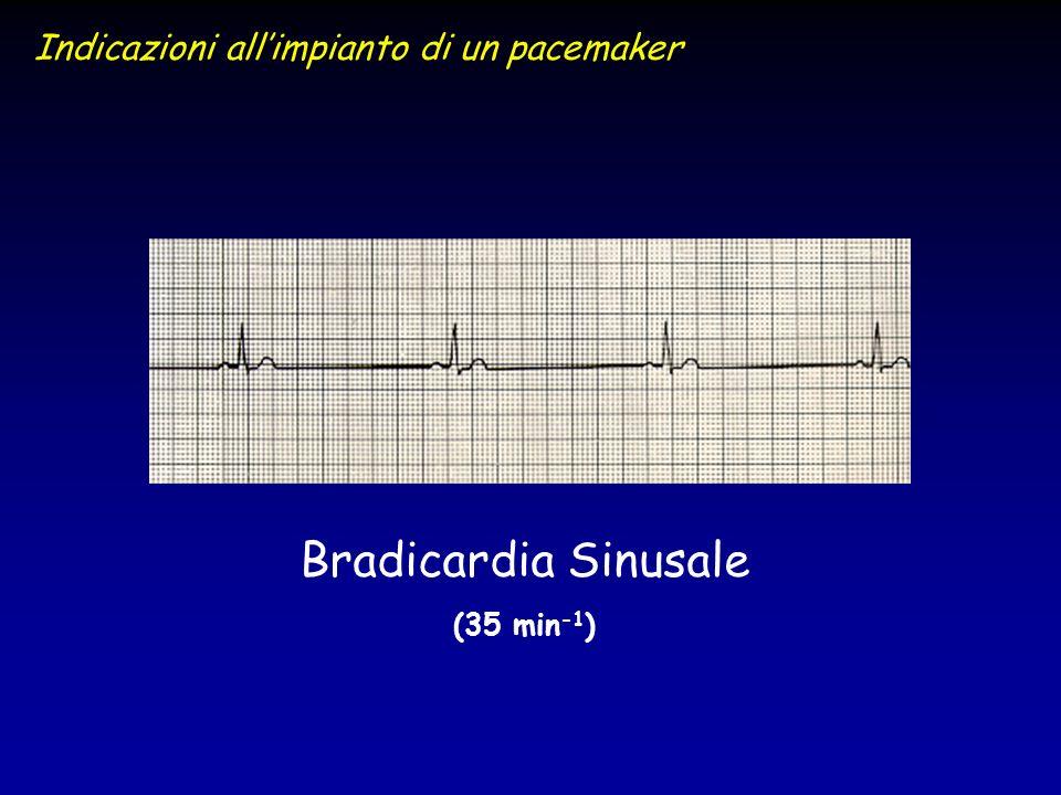 Bradicardia Sinusale Indicazioni all'impianto di un pacemaker