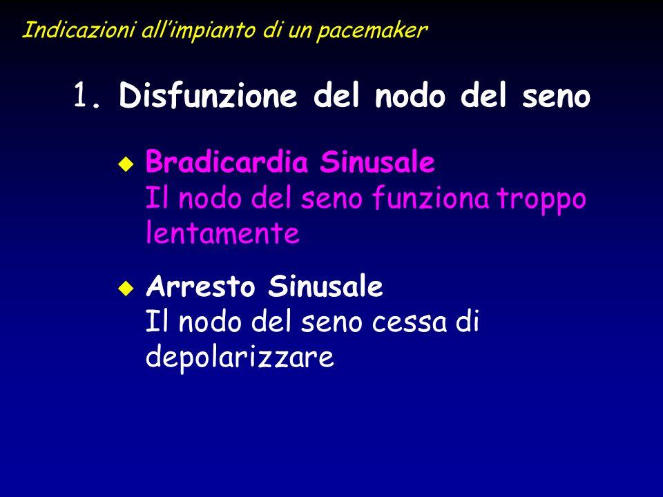. Disfunzione del nodo del seno