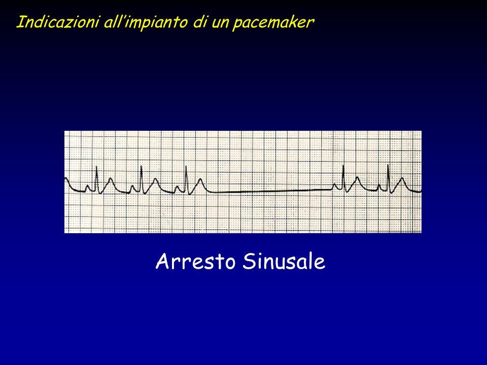 Indicazioni all'impianto di un pacemaker