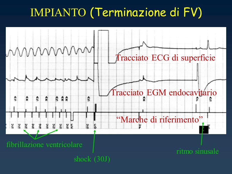 IMPIANTO (Terminazione di FV)