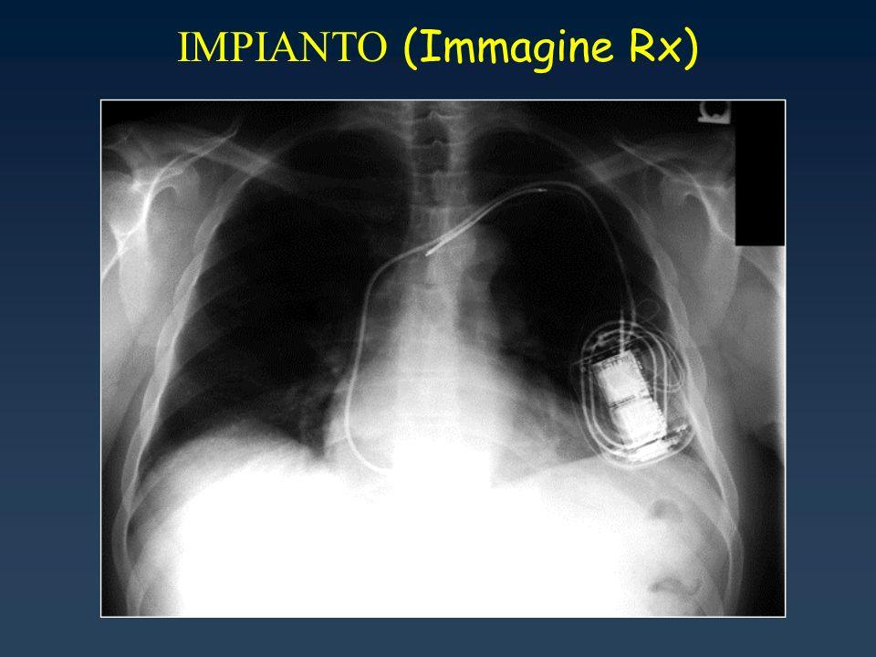 IMPIANTO (Immagine Rx)