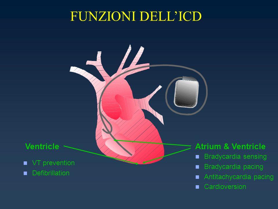 FUNZIONI DELL'ICD Ventricle Atrium & Ventricle Bradycardia sensing