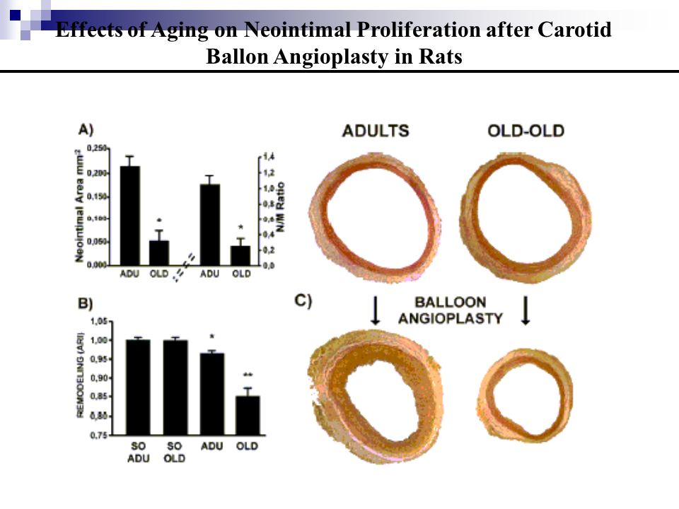 Effects of Aging on Neointimal Proliferation after Carotid Ballon Angioplasty in Rats