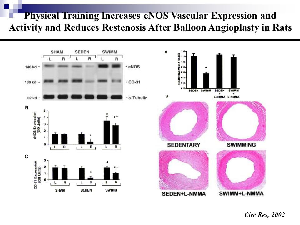 Physical Training Increases eNOS Vascular Expression and