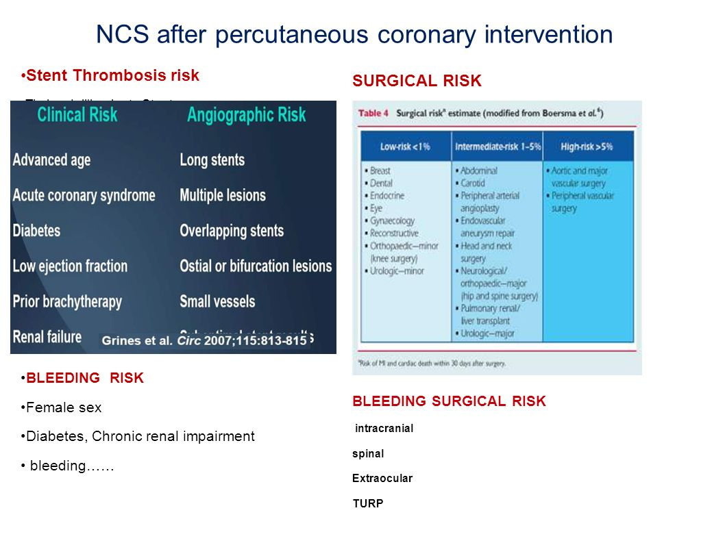 NCS after percutaneous coronary intervention