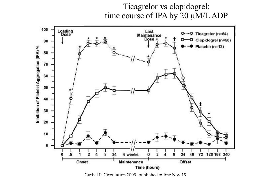 Ticagrelor vs clopidogrel: time course of IPA by 20 M/L ADP