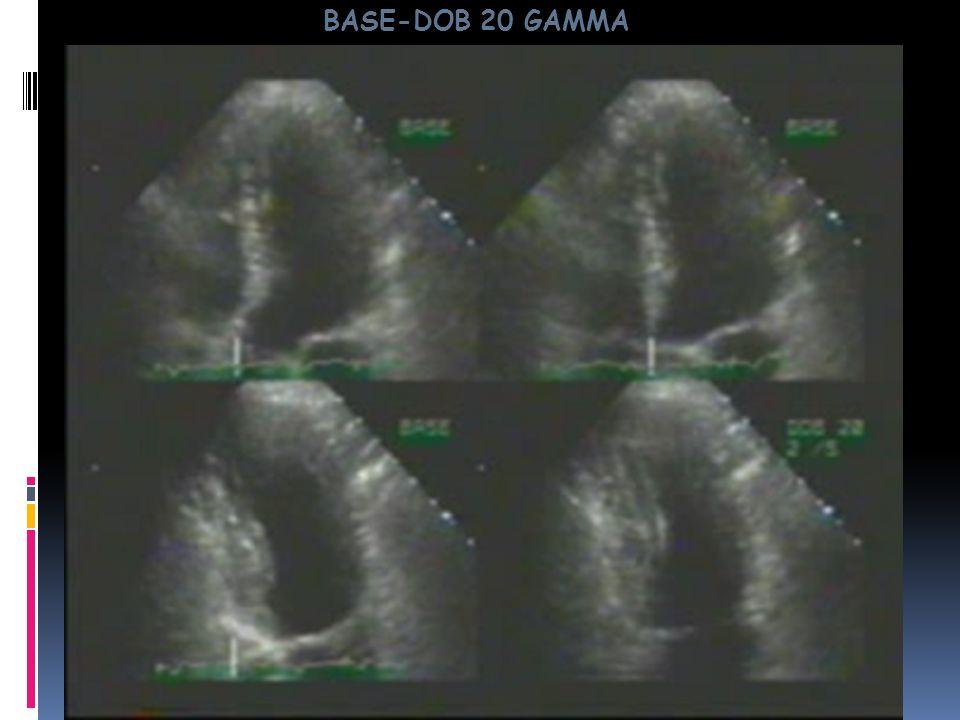 BASE-DOB 20 GAMMA Base 2C Ao Base 4 C Base 2 C 20 g 2