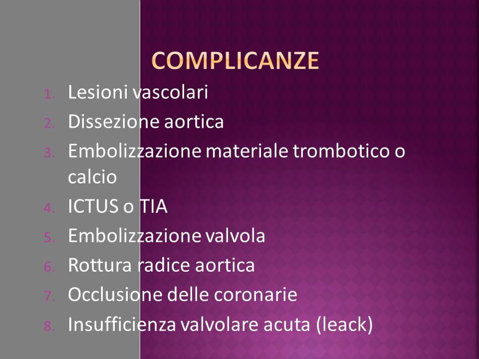 Lesioni vascolari Dissezione aortica. Embolizzazione materiale trombotico o calcio. ICTUS o TIA.