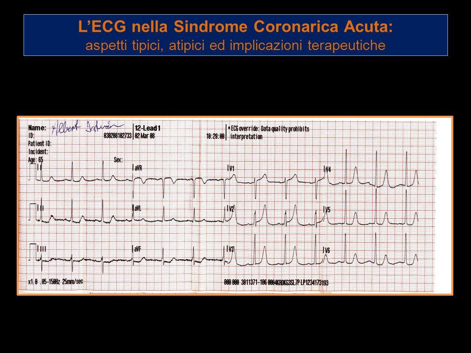 L'ECG nella Sindrome Coronarica Acuta: aspetti tipici, atipici ed implicazioni terapeutiche