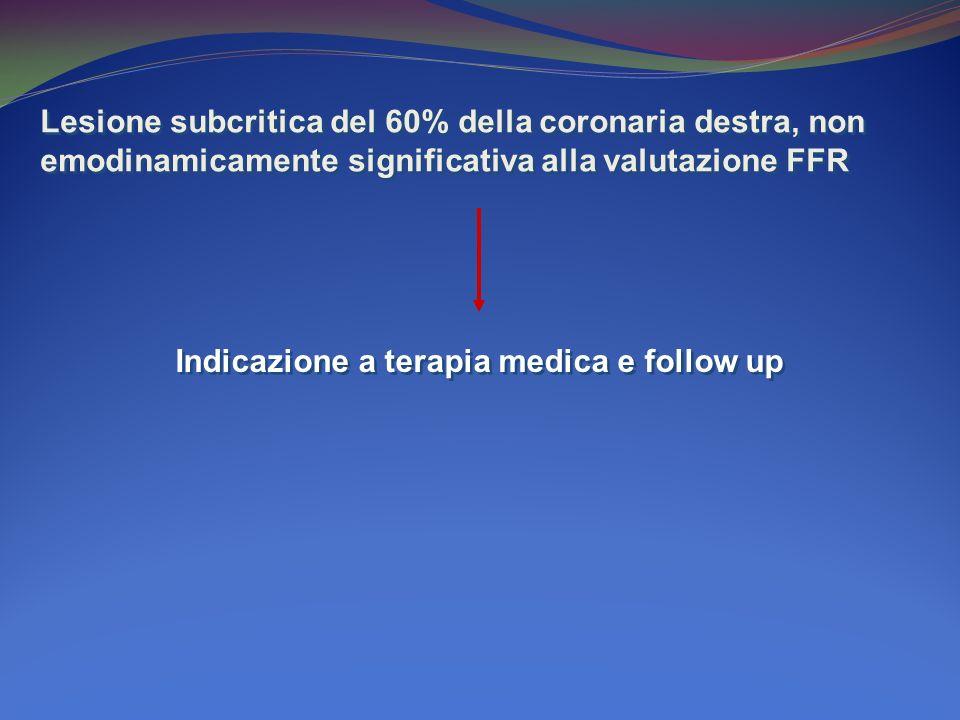Lesione subcritica del 60% della coronaria destra, non emodinamicamente significativa alla valutazione FFR