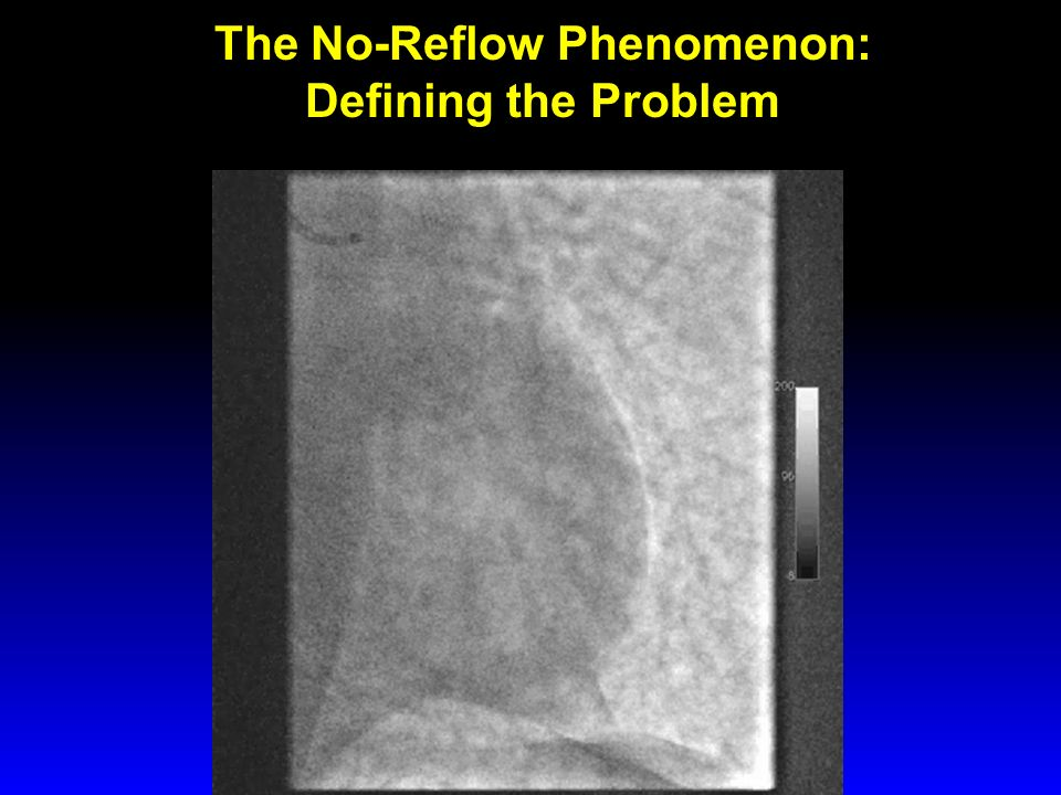 The No-Reflow Phenomenon: Defining the Problem