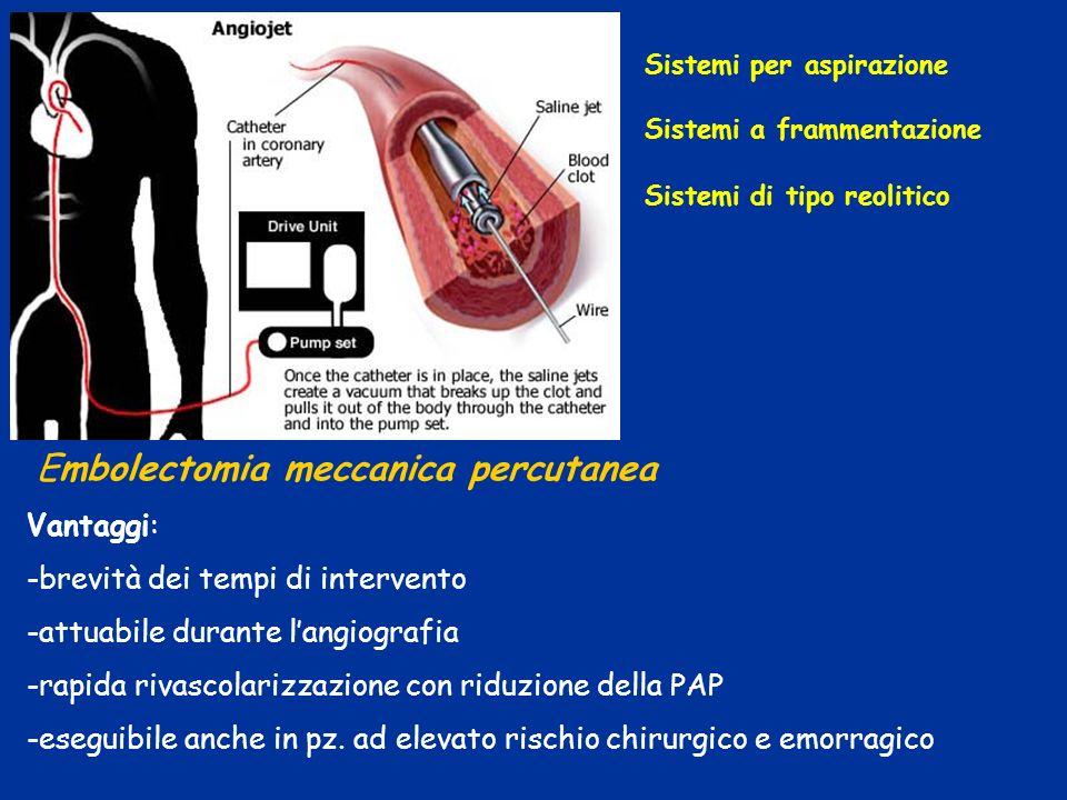 Embolectomia meccanica percutanea