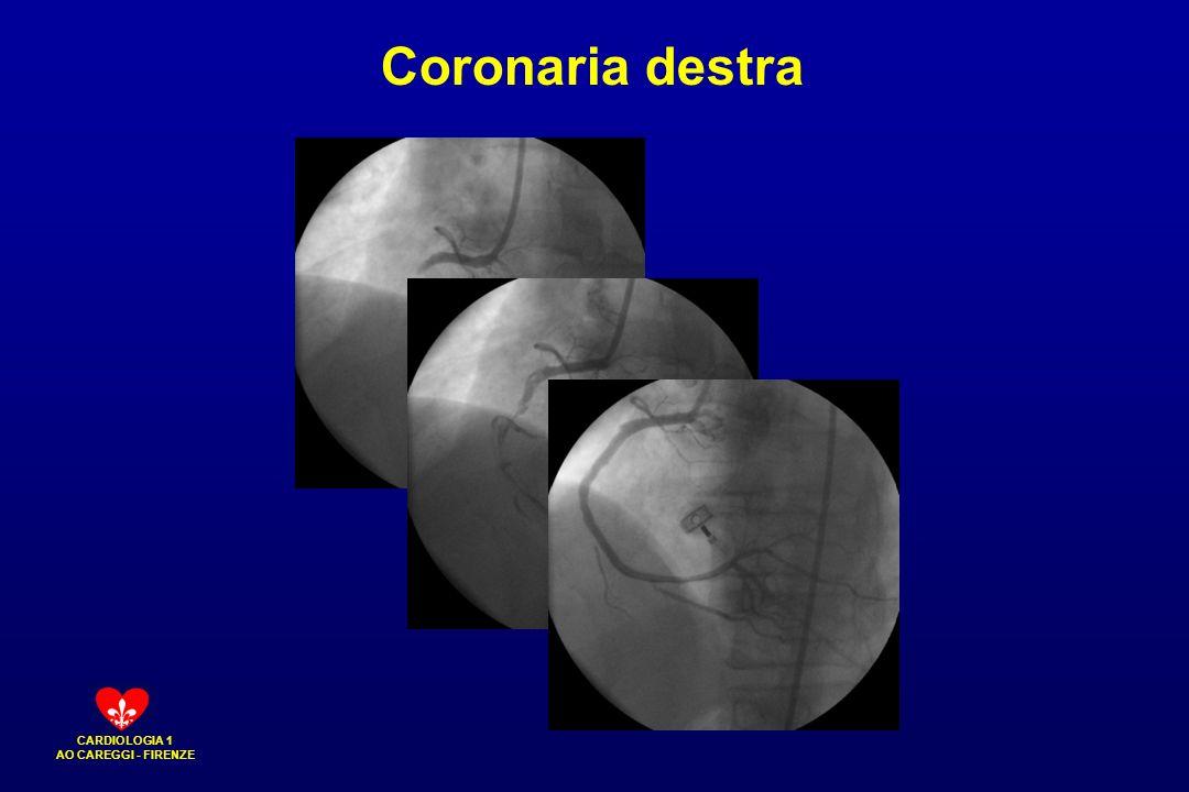 Coronaria destra