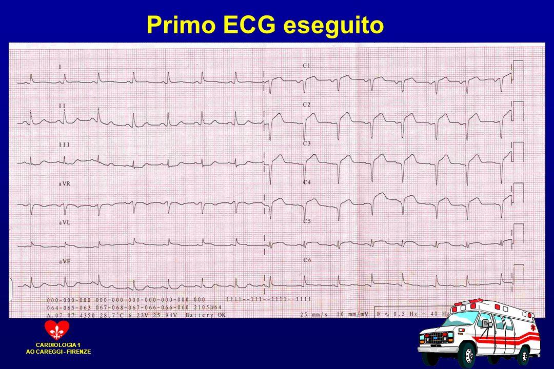 Primo ECG eseguito