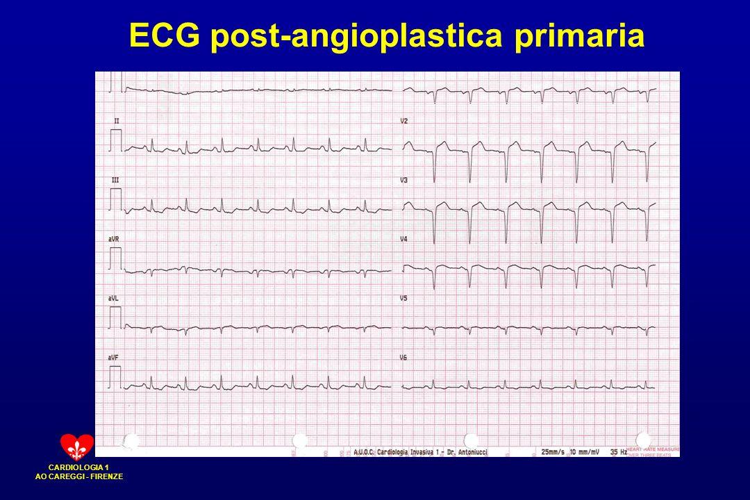 ECG post-angioplastica primaria