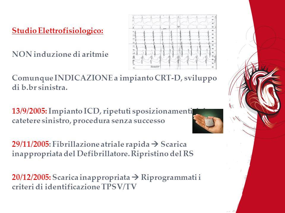 Studio Elettrofisiologico: