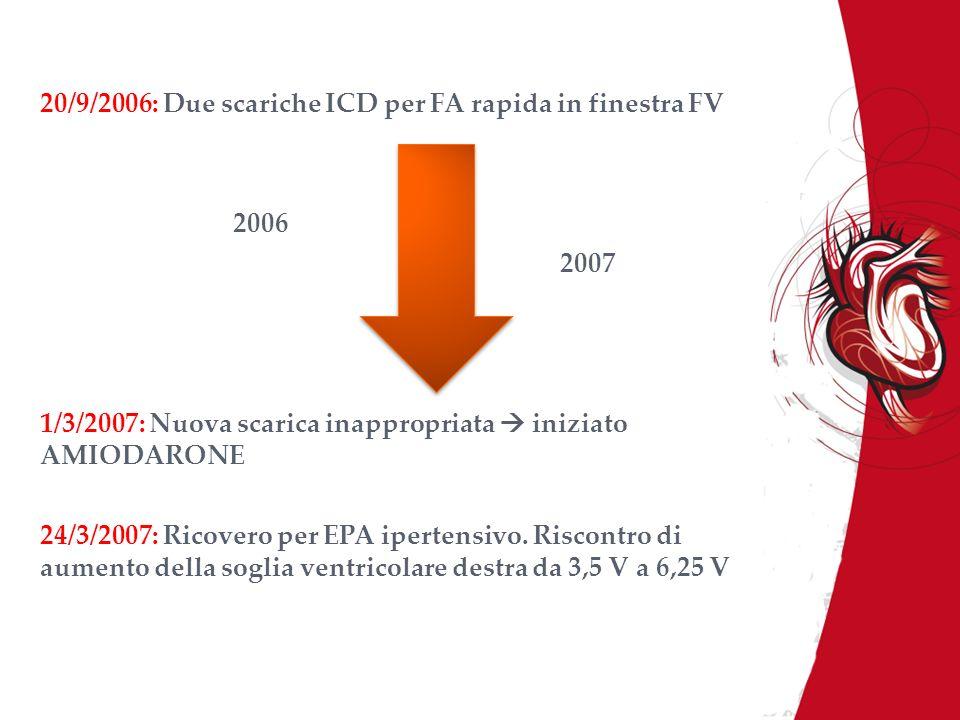 20/9/2006: Due scariche ICD per FA rapida in finestra FV
