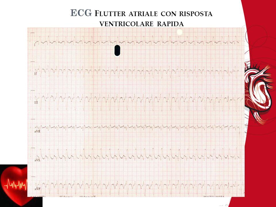 ECG Flutter atriale con risposta ventricolare rapida