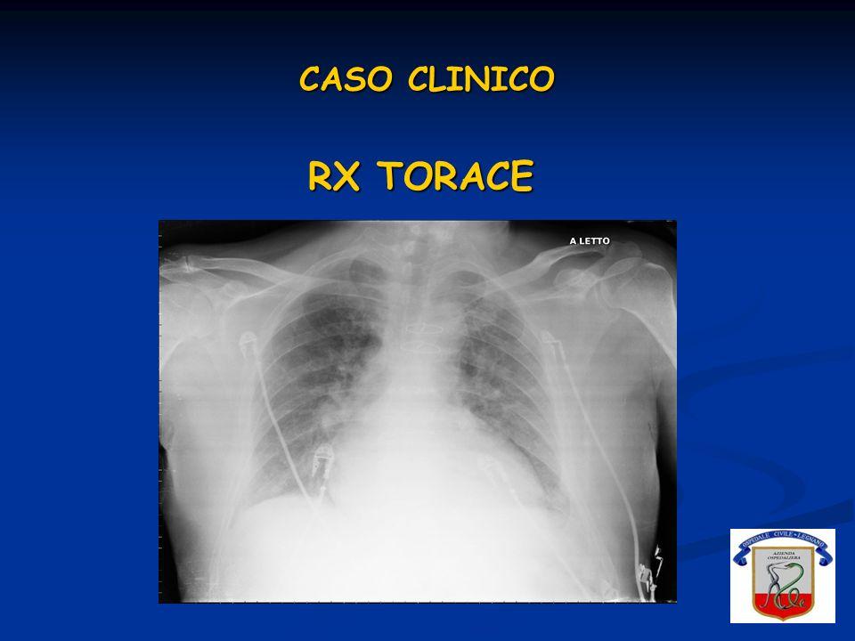CASO CLINICO RX TORACE