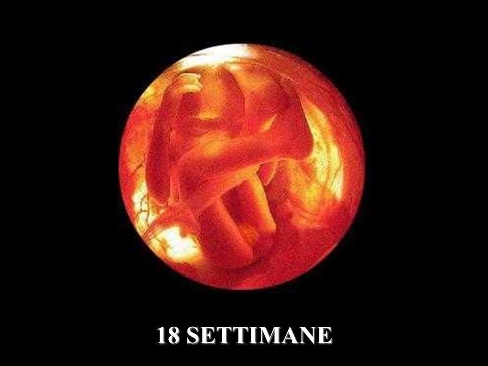 18 SETTIMANE
