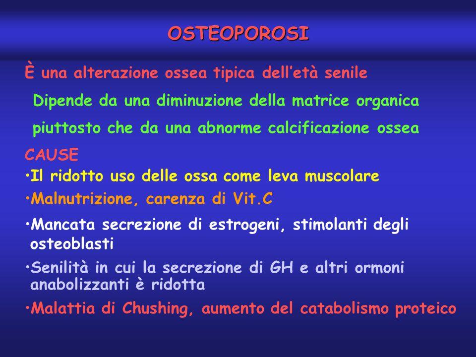 OSTEOPOROSI È una alterazione ossea tipica dell'età senile