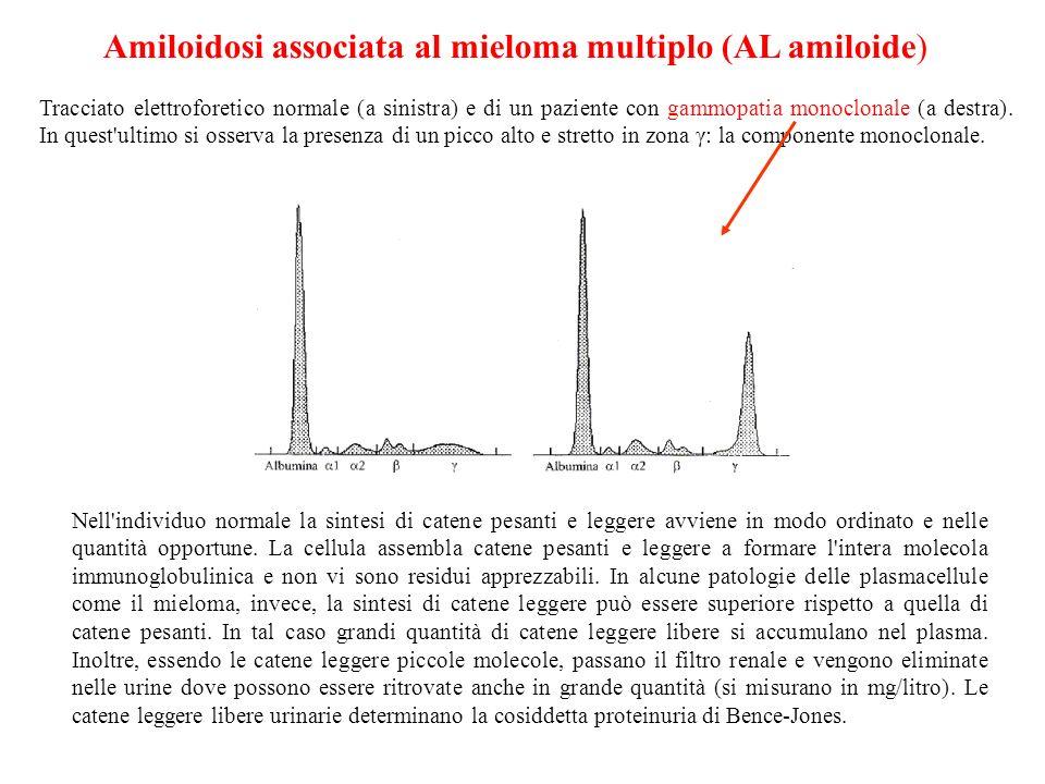 Amiloidosi associata al mieloma multiplo (AL amiloide)
