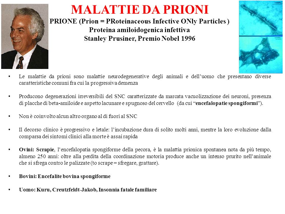 MALATTIE DA PRIONI PRIONE (Prion = PRoteinaceous Infective ONly Particles ) Proteina amiloidogenica infettiva.