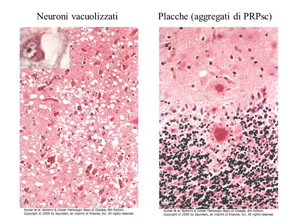 Neuroni vacuolizzati Placche (aggregati di PRPsc)