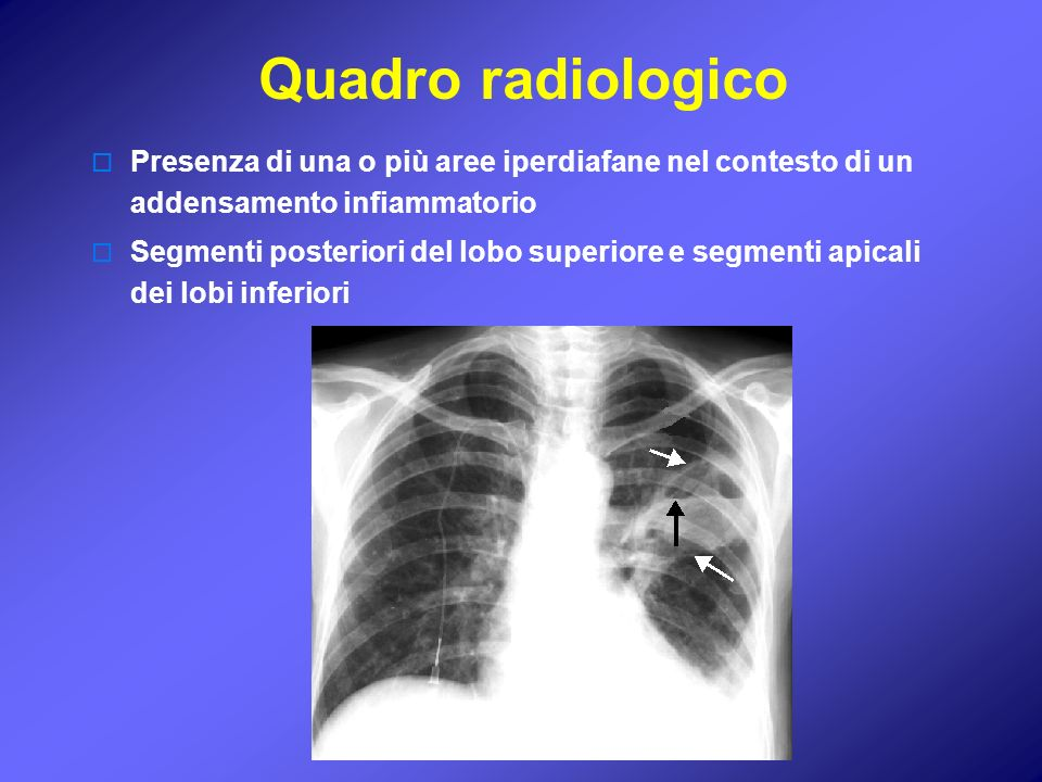 Quadro radiologico Presenza di una o più aree iperdiafane nel contesto di un addensamento infiammatorio.