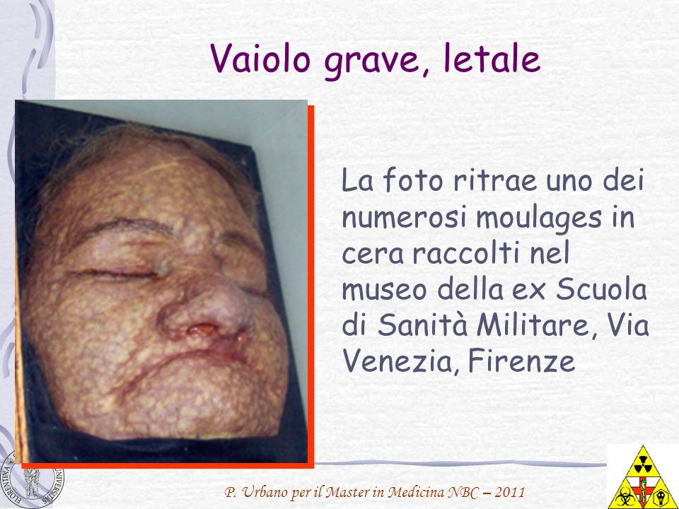 Vaiolo grave, letaleLa foto ritrae uno dei numerosi moulages in cera raccolti nel museo della ex Scuola di Sanità Militare, Via Venezia, Firenze.