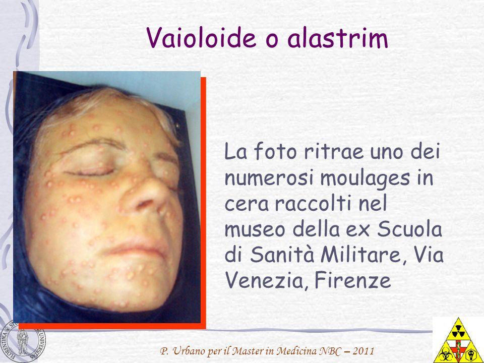 Vaioloide o alastrim La foto ritrae uno dei numerosi moulages in cera raccolti nel museo della ex Scuola di Sanità Militare, Via Venezia, Firenze.