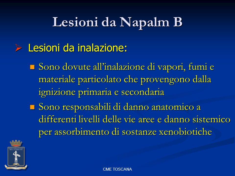 Lesioni da Napalm B Lesioni da inalazione: