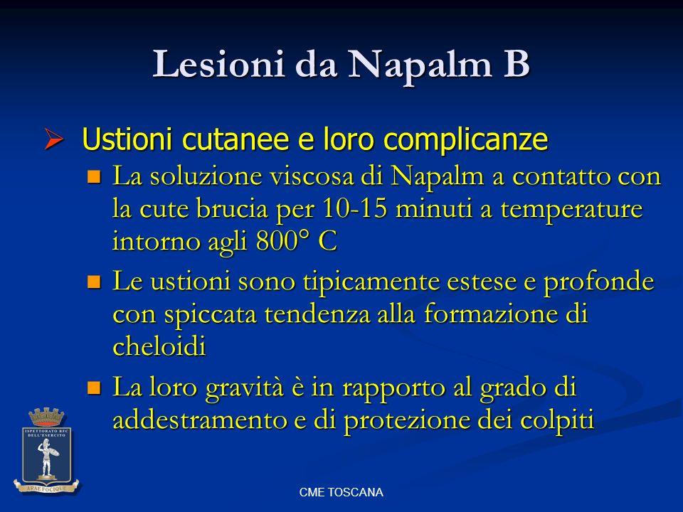 Lesioni da Napalm B Ustioni cutanee e loro complicanze