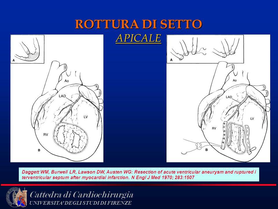 ROTTURA DI SETTO APICALE