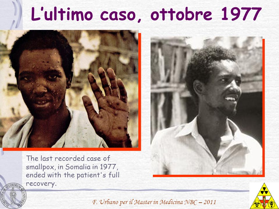 L'ultimo caso, ottobre 1977The last recorded case of smallpox, in Somalia in 1977, ended with the patient s full recovery.