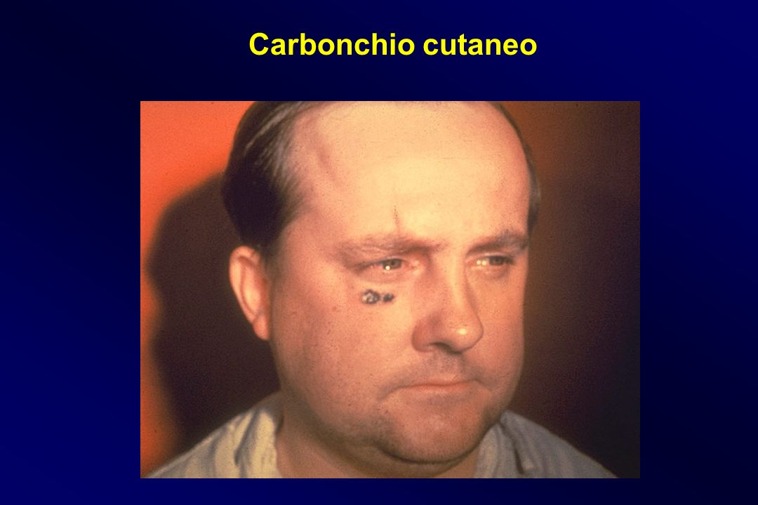 Carbonchio cutaneo