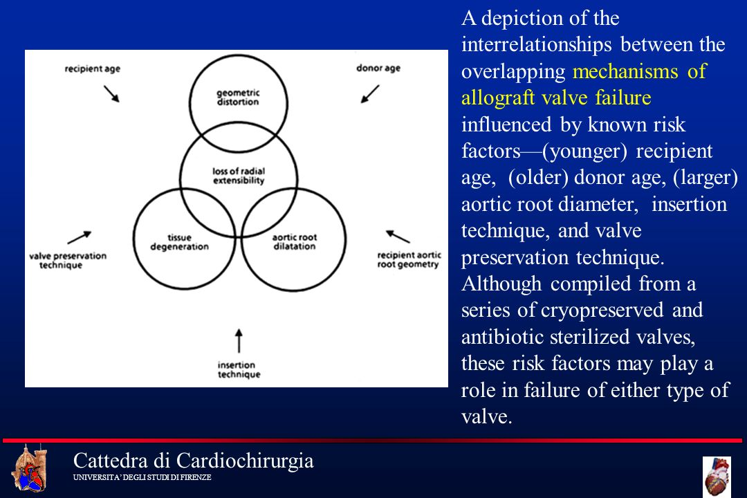 A depiction of the interrelationships between the overlapping mechanisms of allograft valve failure influenced by known risk factors—(younger) recipient age, (older) donor age, (larger) aortic root diameter, insertion technique, and valve preservation technique.