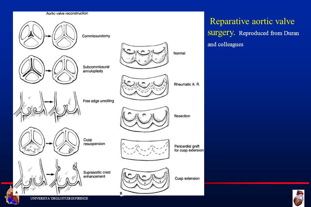 Reparative aortic valve surgery. Reproduced from Duran and colleagues
