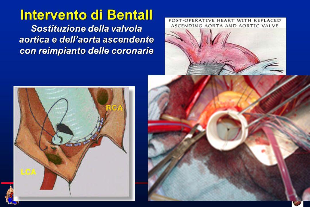Intervento di Bentall Sostituzione della valvola aortica e dell'aorta ascendente con reimpianto delle coronarie.