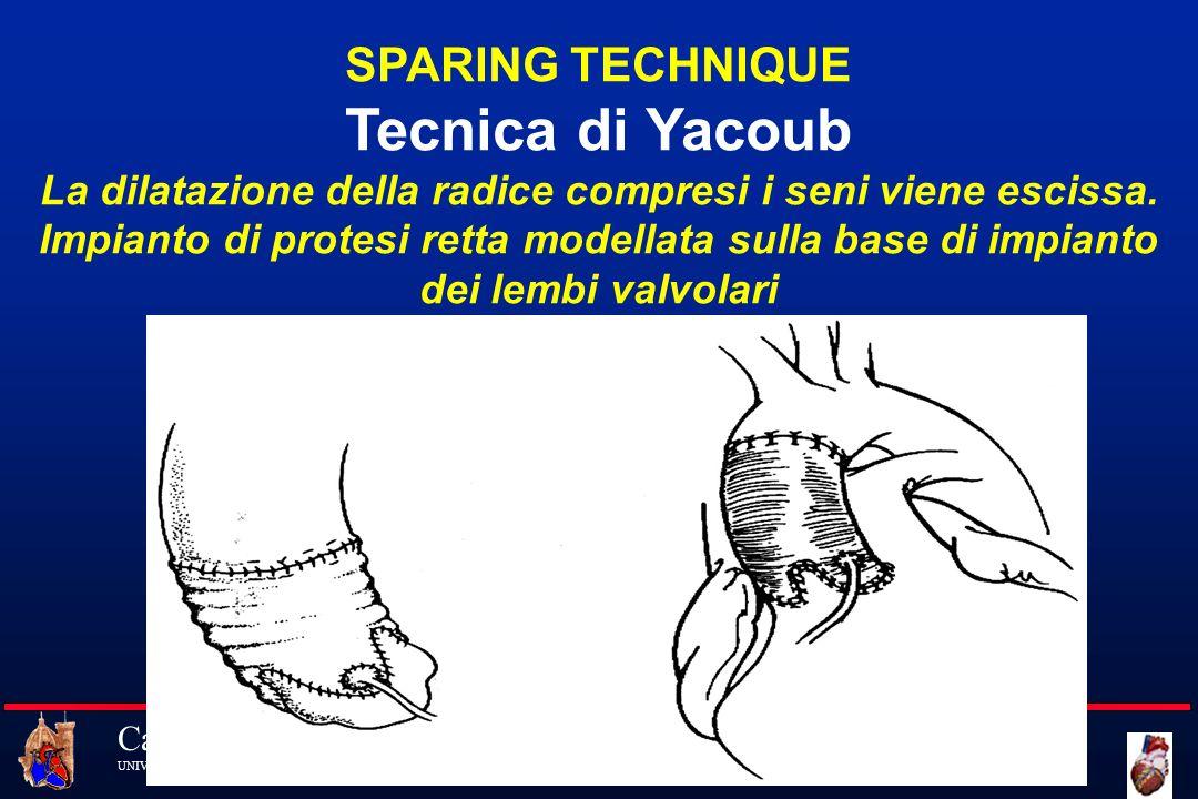 Tecnica di Yacoub SPARING TECHNIQUE